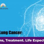 Treatments For A Patient In Stage II Of Lung Cancer