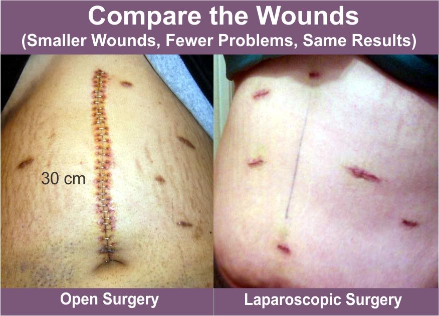 abdominal cancer laparoscopy)