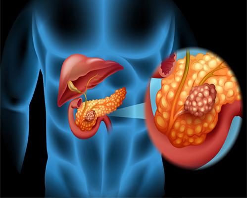 PANCREAS BILE DUCT TUMORS