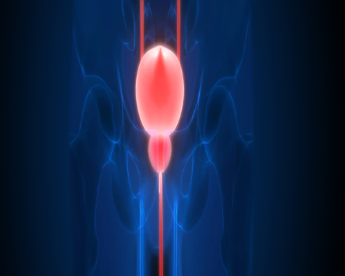 URINARY BLADDER CANCER